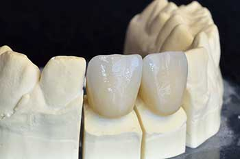 Dental Crowns in North Attleboro