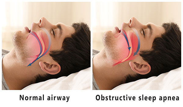 Sleep Apnea Treatment in North Attleboro